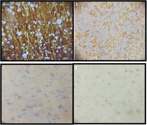 Optic microscopy images of the samples (60×): (a) G2PH1, (b) G2PH2, (c) G2SH1, and (d) G2SH2.