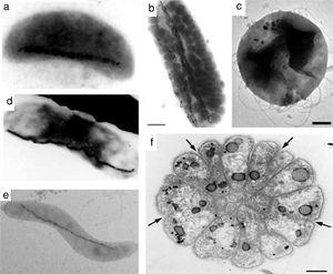 Various morphology of magnetotactic bacteria: (a) vibrios, (b, d) rods (b marker=1μm), (c) coccoid (c marker=200nm), (e) spirilla, and (f) multicellular organism (f marker=1μm). Black nanostructures in micrographs are IONPs. Reprinted with permission from [91].