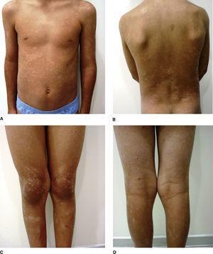 Máculas hipopigmentadas en (A) tronco, (B) espalda y (C, D) piernas.