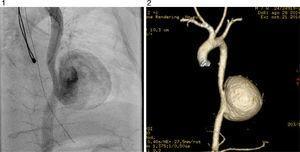 El angiograma muestra aneurisma gigante de la aorta torácica descendente.