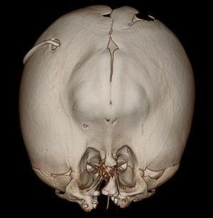 Reconstrucción tridimensional cefálica: evidenciándose cráneo en trébol, herniación frontal, cavidades orbitarias de poca profundidad desplazadas medialmente y catéter de derivación con ingreso frontal derecho.