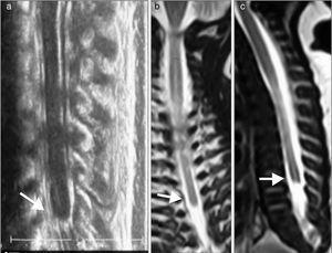 a) Ecografía. b) y c) RM. Médula espinal con extremo distal en situación alta (D7). La morfología del extremo distal medular es anómala y característica de síndrome de regresión caudal, sin el normal ensanchamiento del cono medular, su extremo muestra un término brusco descrito como en cuña, forma de porra o navo (flechas).