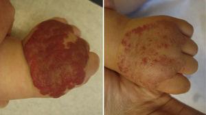 Paciente con resultado +2, tras 6 meses de tratamiento.