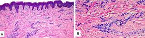 A. Epidermis con ortoqueratosis y espongiosis. Dermis con leve edema e infiltrado perivascular superficial linfocitario. B. Con tinción de Giemsa aumento de mastocitos perivasculares.