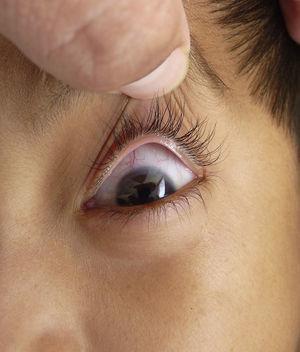 Ojo izquierdo con halo senil, así como dilatación de vasos esclerales.