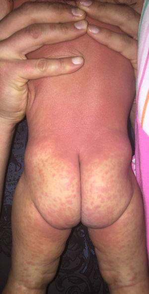 Exantema maculopapular confluente en tronco, glúteos y escaso en extremidades inferiores.