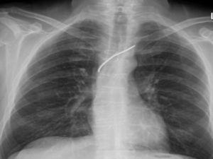 Radiografía de tórax antes de la admisión actual.