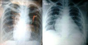 Chest X-ray of patients, at postpartum period. Case 1 has dextrocardia.