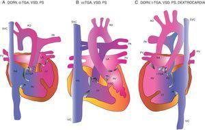 Transposition of Great Arteries; few variants. Case 1 had the third variety and case 2 had the first. SVC: superior vena cava; AO: aorta; PA: pulmonary artery; RA: right atrium; RV: right ventricle; LA: left atrium; LV: left ventricle; PV: pulmonary vein; IVC: inferior vena cava; VSD: ventricular septal defect; PS: pulmonary stenosis.