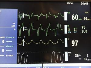 Captura de pantalla del monitor tras la instauración del ritmo de marcapasos. Tras la ablación alcohólica, se instauró un BAV de tercer grado, provocando la activación del marcapasos transitorio previamente implantado.