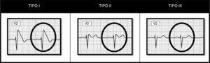 Patrones electrocardiográficos asociados al síndrome de Brugada.