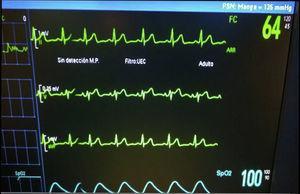 Patrón electrocardiográfico intraoperatorio tipo II.