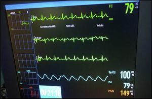 Patrón electrocardiográfico normalizado tras administración de atropina.