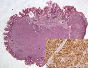 Tumor neuroendócrino (HE 12.5x); en detalle inmunohistoquímica positiva para cromogranina (400x).