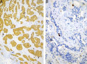 Inmunoreacciones. A) Sinaptofisina. B) Ki-67 (MIB-1). Las tinciones de inmunohistoquímica para confirmar la estirpe neuroendocrina (sinaptofisina y cromogranina A) fueron positivas. La proliferación celular (Ki-67) fue de 1%. El diagnóstico fue de tumor neuroendocrino bien diferenciado grado I (tumor carcinoide).