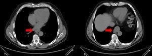 Tomografía Axial Computada (TAC) de abdomen.