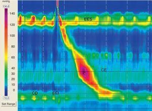 TPEAR con UEG normal, peristalsis esofágica normal. EES: esfínter esofágico superior; EEI: esfínter esofágico inferior; CD: crura diafragmática.