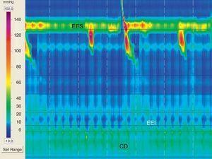 Hernia hiatal pequeña con aperistalsis esofágica. EES: esfínter esofágico superior; EEI: esfínter esofágico inferior; CD: crura diafragmática.