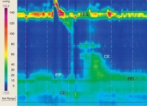 Hernia hiatal pequeña con obstrucción al flujo distal. IRP: presión de la relajación integrada de 15,5mmHg; EES: esfínter esofágico superior; CE: cuerpo esofágico; EEI: esfínter esofágico inferior; CD: crura diafragmática.