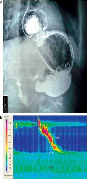A) Serie esofagogastroduodenal con una gran hernia hiatal por deslizamiento. B) TPEAR: hernia hiatal gigante de 7,5cm, con peristalsis esofágica normal. EES: esfínter esofágico superior; CE: cuerpo esofágico; EEI: esfínter esofágico inferior; CD: crura diafragmática.
