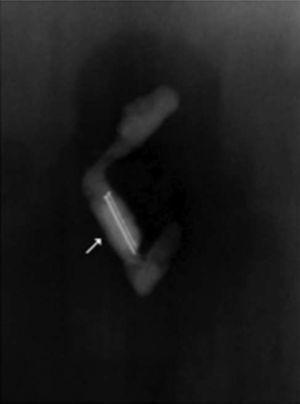 Radiografía de la pieza quirúrgica que muestra 2 alfileres dentro del lumen apendicular.