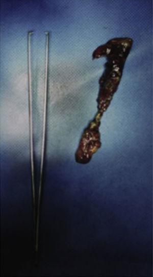 Apéndice cecal con peritonitis fibrinopurulenta y necrosis. Alfileres en su interior no mostrados.