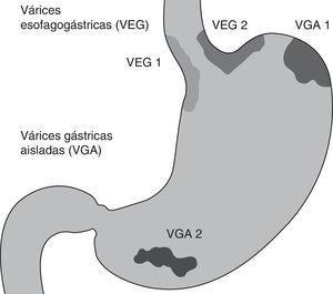 Clasificación de las várices gástricas. Clasificación descrita por Sarin, las VEG tipo 1 son continuación de las várices esofágicas extendiéndose hasta 5cm debajo de la unión esofagogástrica a lo largo de la curvatura menor del estómago, las VEG tipo 2 se extienden por debajo de la unión esofagogástrica hacia el fondo gástrico. Las VGA se dividen en VGA tipo 1, localizadas en el fondo, y VGA tipo 2, localizadas en cualquier otra parte del estómago. VGA: várices gástricas aisladas; VEG: várices esofagogástricas.