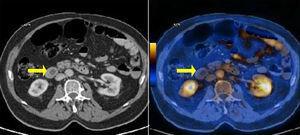 Tomografía por emisión de positrones-tomografía computarizada (PET/TC).