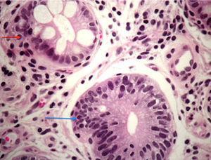 Flecha azul. Mucosa Gástrica Displasia de Bajo Grado. Perdida de la polaridad de los núcleos basales, mostrando un patrón pseudoestratificado con pleomorfismo nuclear e hipercromasia. (Corte teñido en hematoxilina-eosina) Flecha roja. Glándula gástrica. Metaplasia intestinal.