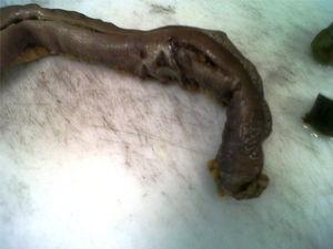 Imagen de la pieza quirúrgica: se puede ver la isquemia producida por el bezoar.