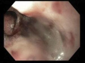 Perforación esofágica.