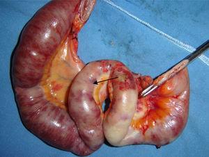 Zona intestinal endurecida, edematizada, con datos francos de isquemia y zonas de necrosis de la serosa, con evidente disminución del tamaño de la luz intestinal.