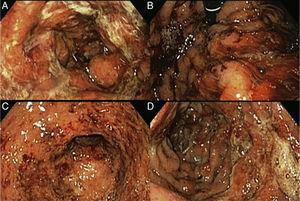 A) Mucosa gástrica con edema, eritema y exudado mucopurulento. B) Retrovisión gástrica mostrando sangrado espontáneo en capa. C) Píloro abierto, edematoso con sangrado en capa. D) Duodeno con mucosa y pliegues edematosos, friables, con erosiones cubiertas de exudado mucopurulento y restos hemáticos.
