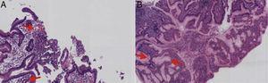 A) Biopsia de mucosa gástrica con microabscesos. B) Hiperplasia foveolar e infiltrado inflamatorio luminal.