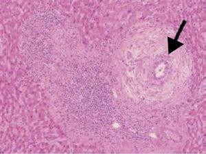 Fibrosis periductular severa característica de CEP «cáscara de cebolla».
