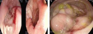 a) Endoscopia digestiva alta: úlceras esofágicas lineales en tercio superior del esófago. b) Endoscopia digestiva baja: lesión adyacente a válvula ileocecal, sobre-elevada y friable que condiciona estenosis.