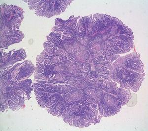 Imagen microscópica en la que se evidencia formación polipoide de eje ramificado fibroconectivo con bandas musculares lisas, y revestimento por mucosa intestinal de superficie vellosa compatible con pólipo hamartomatoso.