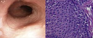 A) Aspecto después del tratamiento con IBP. Se observa mejoría de la mucosa. B) Aspecto de la biopsia de mucosa esofágica después del tratamiento con IBP. Obsérvese la desaparición del infiltrado de eosinófilos.