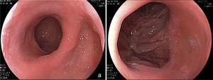 Aspecto endoscópico de la derivacion gástrica en Y de Roux. a) Bolsa gástrica. b) Anastomosis gastrointestinal.
