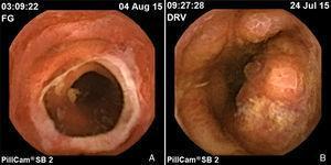 Enteritis por EICH. A) Estenosis secundaria a úlcera. B) Mucosa con pérdida de vellosidades, erosiones y úlceras.