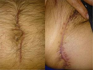 Se observa resultado final con heridas cicatrizadas y sin datos de infección.