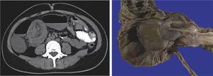 Caso 4. La TC de abdomen demostró morfología de doble pared indicativa de intususcepción de íleon en colon ascendente. La pieza quirúrgica reportó PFI en íleon de 7.2×3.8cm e intususcepción ileal.