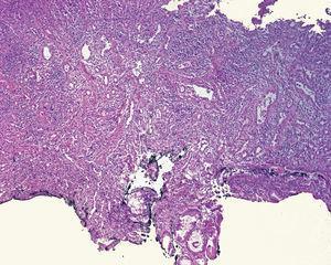 Caso 6. Laminilla de la neoplasia teñida con hematoxilina y eosina, por debajo de la mucosa esofágica&#59; se observa proliferación fusocelular, vasos prominentes y abundante infiltrado inflamatorio por eosinófilos y linfocitos.