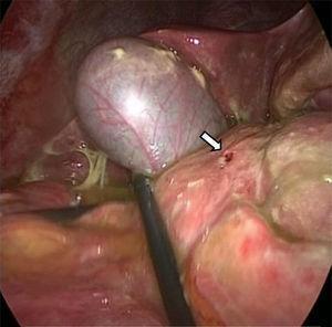 Úlcera duodenal perforada de 5mm en cara anterior de la primera porción duodenal (flecha blanca).