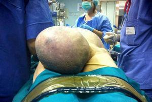 La exploración clínica que muestra la presencia de la hernia inguinal derecha gigante.