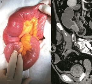 (a) Segmento intestino delgado con intususcepción íleo-ileal&#59; (b) TAC contrastada de corte coronal, con retracción de grasa y vasos mesentéricos, y (c) TAC contrastada de corte sagital, imagen de «tiro al blanco».