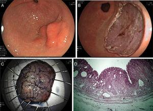 A) Lesión neoplásica superficial tipo 0IIa+IIc en el antro gástrico. B) Disección endoscópica de la submucosa con resección de tumor en bloque. C) Muestra resecada fijada para valoración histológica mostrando displasia de alto grado con márgenes libres, ambos verticales y laterales, y sin invasión linfática o vascular. D) Histología de la muestra DESM mostrando adenoma foveolar tipo II con displasia de alto grado limitado al epitelio con márgenes libres ambos laterales y verticales.