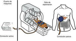 Esquema de los componentes del equipo de elastografia por resonancia magnética. En el cuarto de máquinas se encuentra el equipo conductor activo que genera pulsaciones. Estas se transmiten en forma de ondas a través de un tubo de plástico que conecta dicha máquina con la paleta, que es un conductor pasivo de 10cm de diámetro que se coloca frente al hígado y las transmite al órgano. La paleta se fija al cuerpo con una banda elástica.