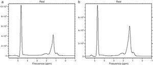 Espectroscopia de lípidos. Las gráficas a y b muestran 2picos principales: a la izquierda un pico elevado que corresponde al agua y, a la derecha, uno de menor altura que corresponde a la concentración de triglicéridos. Nótese que este pico es más elevado en la gráfica b en un paciente con mayor concentración de lípidos.