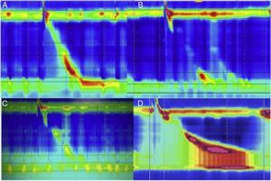 A) Deglución normal, peristalsis normal con EEI competente en paciente con funduplicatura. B) Deglución normal, peristalsis fallida con EEI incompetente en paciente con funduplicatura. C) Deglución normal, amplitud disminuida y falta de relajación del EEI en paciente con funduplicatura. D) Deglución normal, amplitud aumentada, falta de relajación del EEI y evidente obstrucción del tracto de salida con incremento de la presión intrabolo (frontalización).